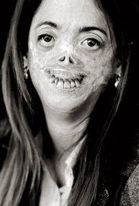 vampir hastalığı, porfiria,